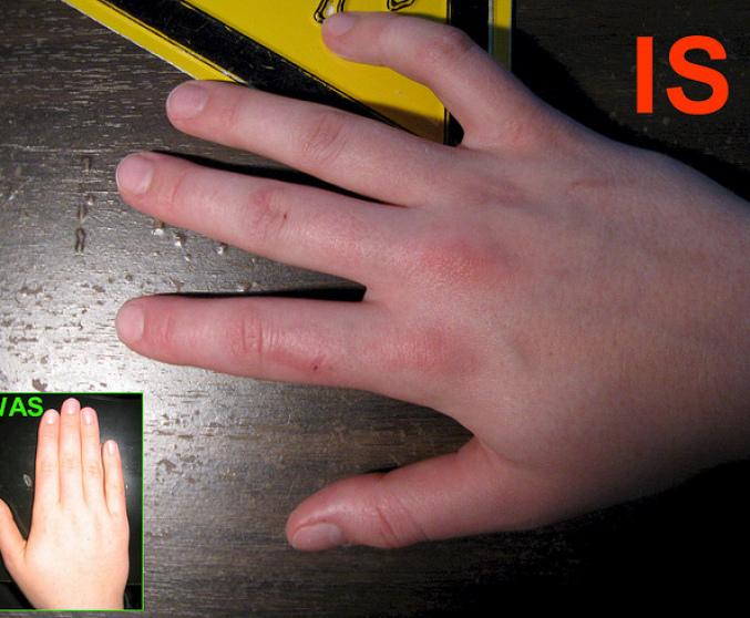 Все публикации с тегом «артрит кисти рук лечение народными ...