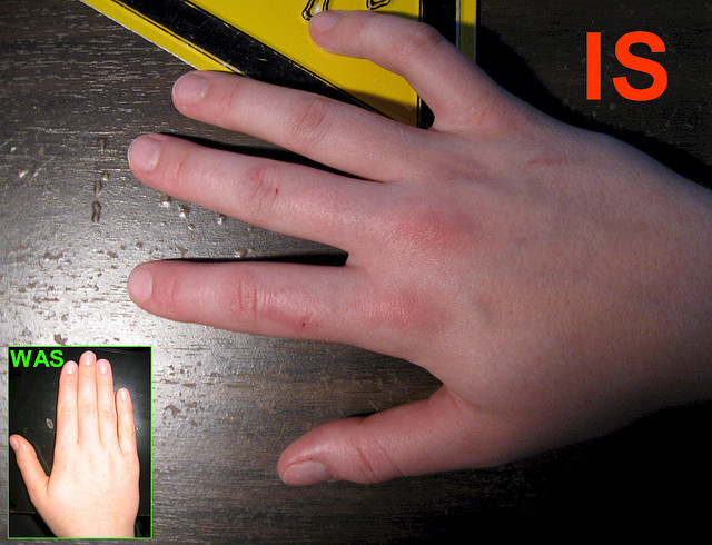 Артрит кисти рук: лечение / Суставы / Медицина / СМУФ — интернет ...